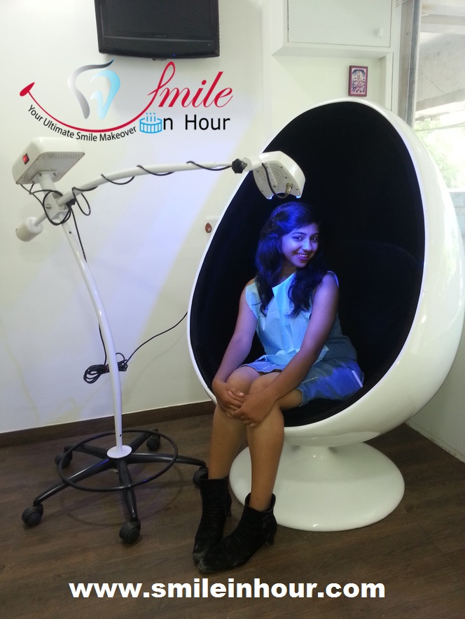 Smile Makeover Smile Spa in Ahmedabad, Gujarat, India by smile in hour cosmetic clinic in bodakdev