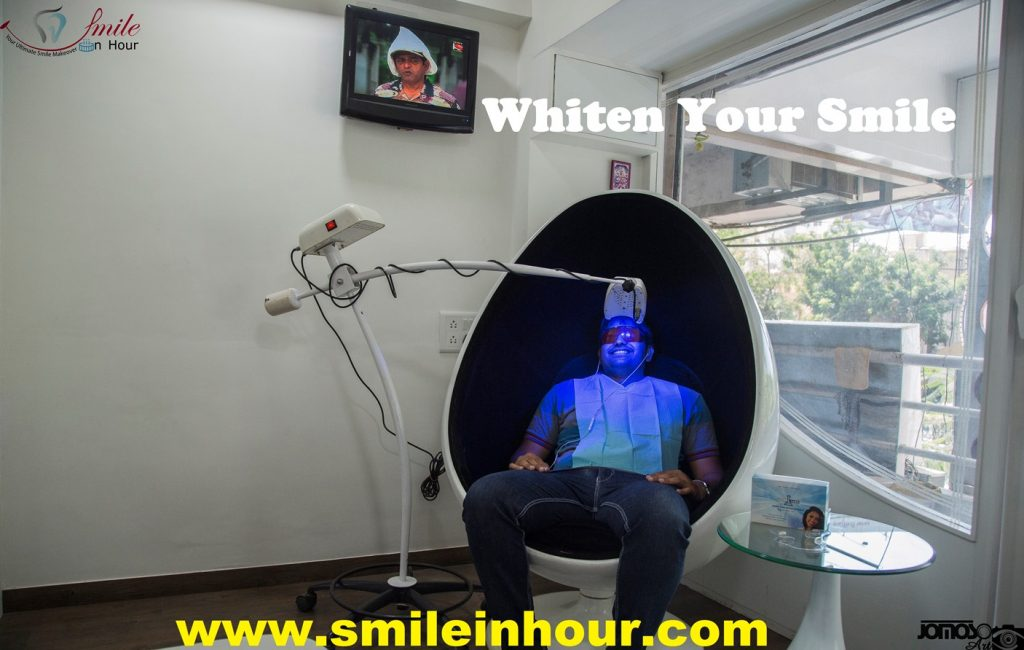 Smile in hour Cosmetic Clinic teeth whitening Ahmedabad, Gujarat, India