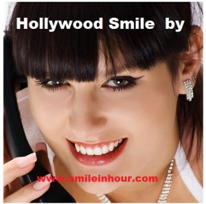 how to get a hollywood smile, procedure, cost in smile in hour ahmedabad india