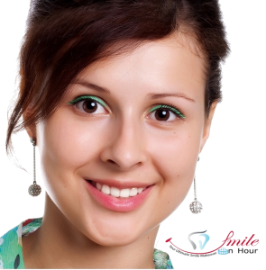 smile rejuvenation dental scaling and polishing cost in Ahmedabad India, by smile in hour cosmetic clinic Bodakdev