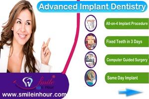 Advanced Dental Implants Services Smile in Hour India Mumbai Ahmedaba Delhi Hyderabad Chennai London HP