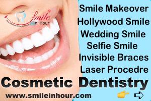 Smile in Hour Specialse in Cosmetic Laser Dentistry India Mumbai Delhi Ahmedabad, Hyderabad, Chennai
