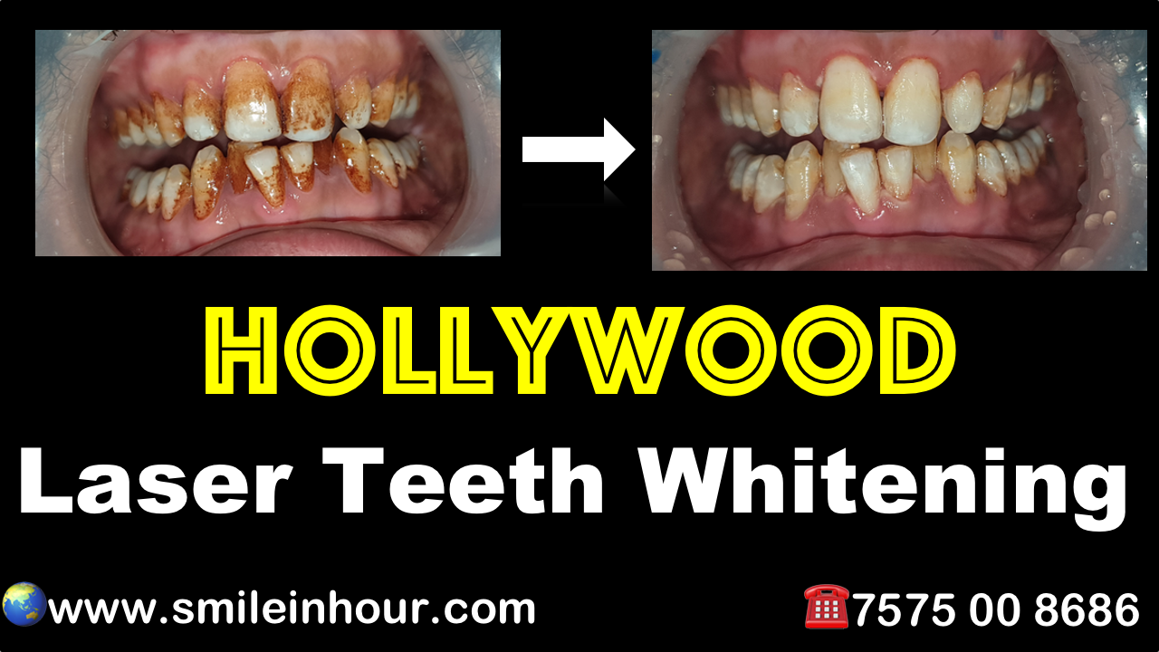 Hollywood laser teeth whitening cost review ahmedabd gujarat india