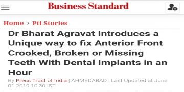 How to fix Anterior Front Crooked, Broken or Missing Teeth With Dental Implants in an Hour Ahmedabad Gjuarat India