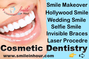 Smile in Hour Specialse in Cosmetic Laser Dentistry India Mumbai Delhi Ahmedabad, Hyderabad, Chennai
