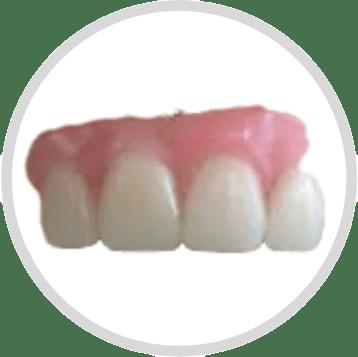 four front teeth dentures in India by Smile in Hour Dentist Dental Clinic Ahmedabad Mumbai New Delhi Udaipur Chennai Hyderabad Kolkata