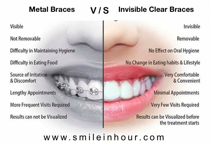 Invisible Clear Braces Cost metal braces vs invisible clear braces cost procedure benefits, which is faster result