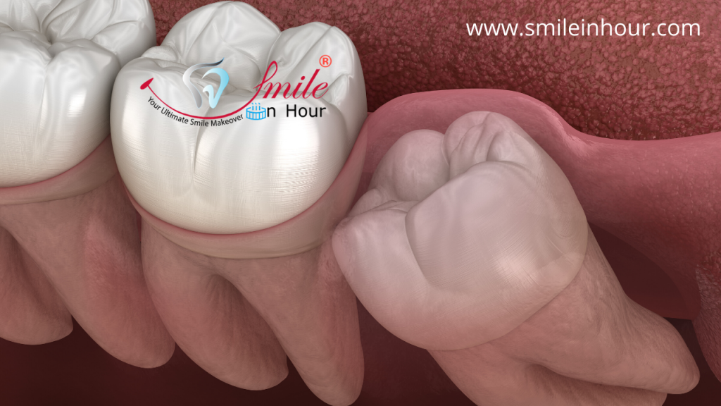 Types or Classification of Impacted Wisdom Tooth Smile in hour dentist best dental clinic Ahmedabad Mumbai New Delhi Chennai Kolkata Hyderabad India