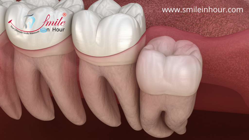 Types or Classification of Impacted Tooth Smile in hour dentist best dental clinic Ahmedabad Mumbai New Delhi Chennai Kolkata Hyderabad_India