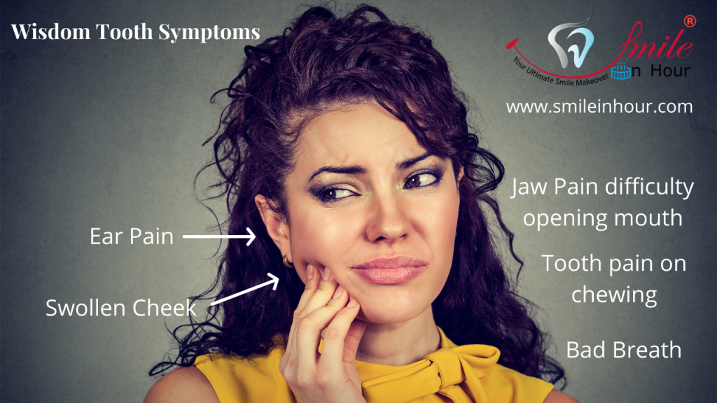 What are wisdom tooth symptoms Smile in hour dentist best dental clinic Ahmedabad Mumbai New Delhi Chennai Kolkata Hyderabad India
