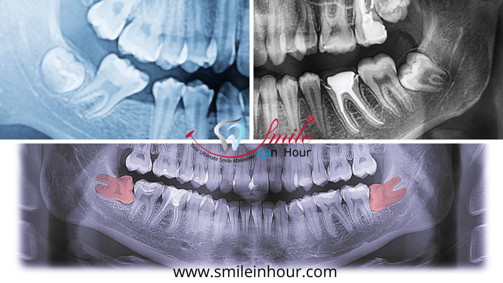 X Ray Types or removal Impacted Tooth Smile in hour dentist best dental clinic Ahmedabad Mumbai New Delhi Chennai Kolkata Hyderabad India